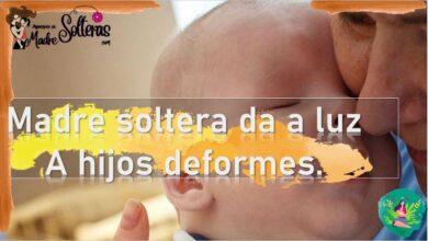 Madre soltera da a luz a hijos deformes 16
